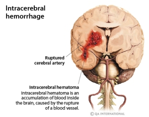 cerebral_hemorrhage