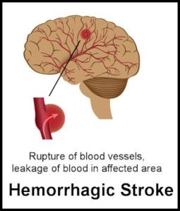Hemorrhagic-stroke-image